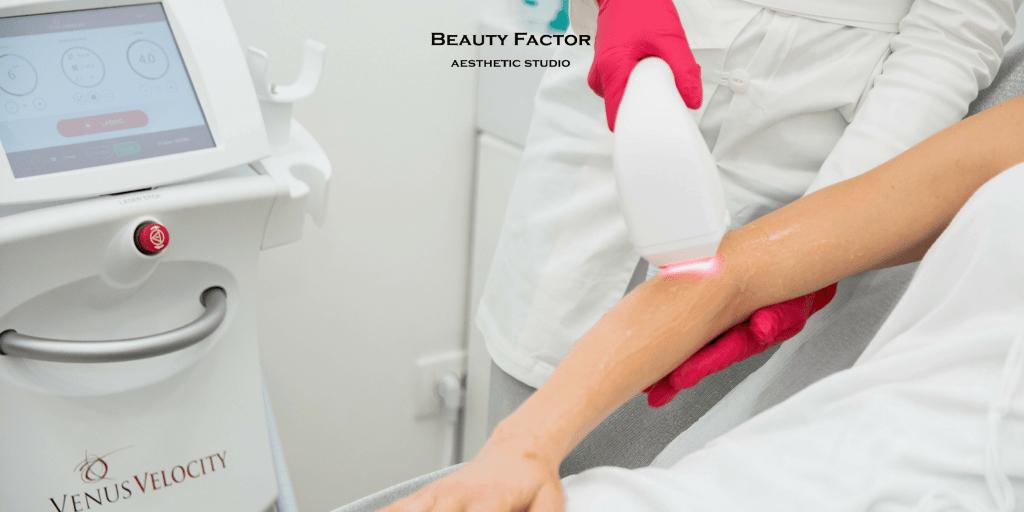 Kako se pripremiti za lasersku epilaciju Beauty Factor
