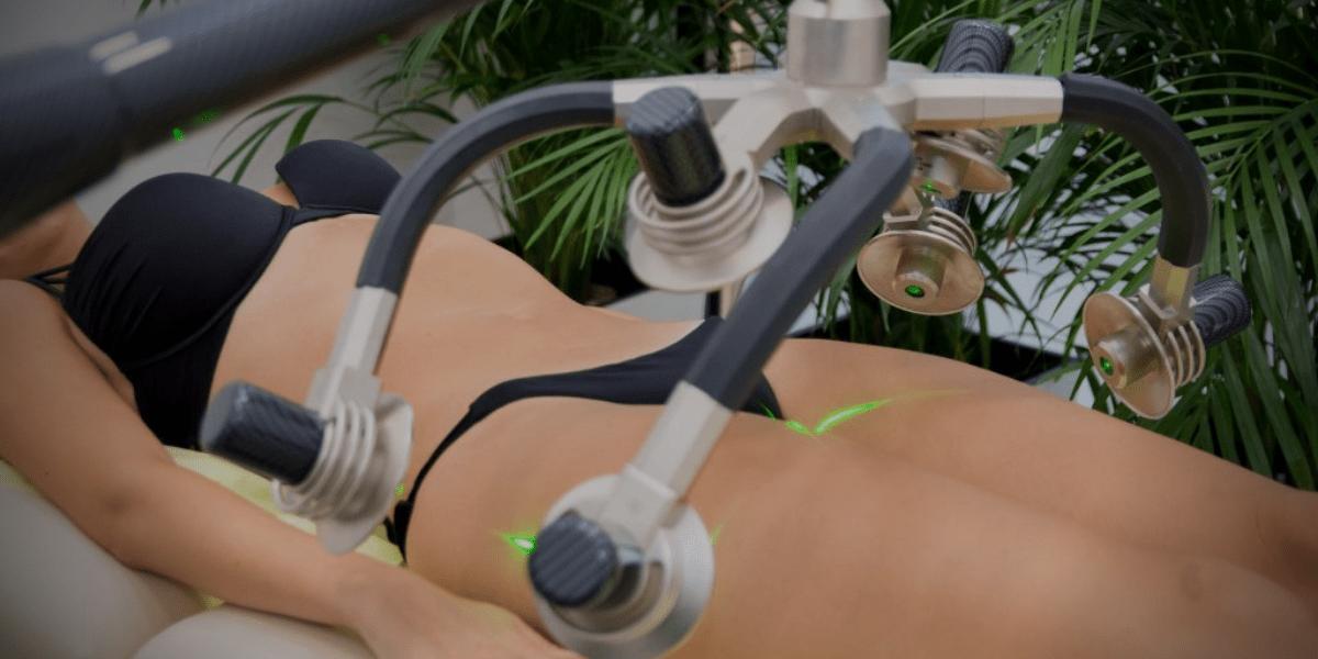 Zerona laser za mrsavljenje Beauty Factor